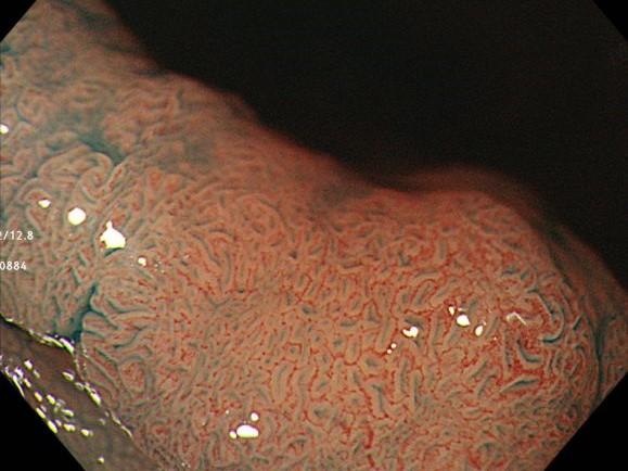 表面の構造から「腺腫」という良性腫瘍と診断