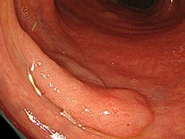 大腸の腺腫の通常観察